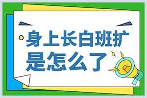 富田兴龙湾去哪里可以治疗白癜风
